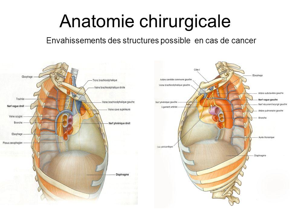 Anatomie chirurgicale Envahissements des structures possible en cas de cancer