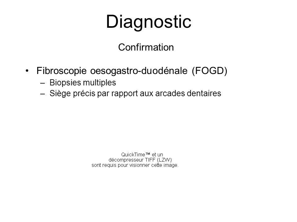 Diagnostic Fibroscopie oesogastro-duodénale (FOGD) –Biopsies multiples –Siège précis par rapport aux arcades dentaires Confirmation