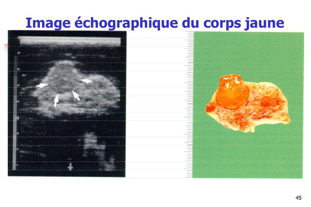 45 Image échographique du corps jaune