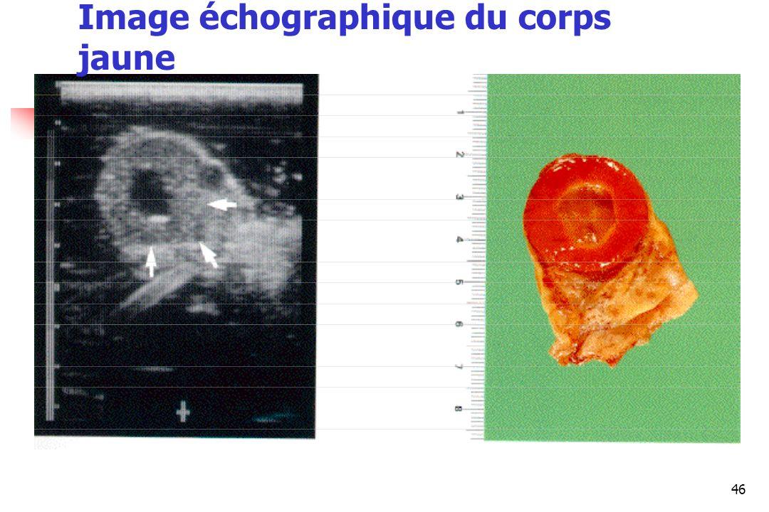 46 Image échographique du corps jaune