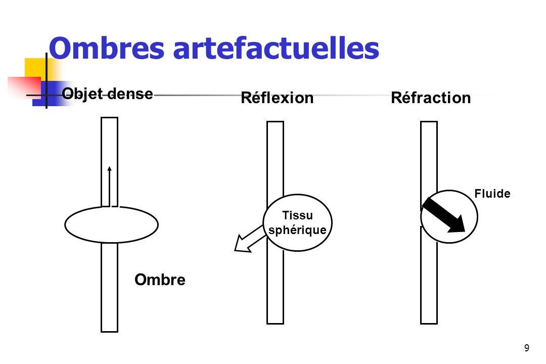 9 Os Tissu sphérique Tissu sphérique Objet dense Réflexion Réfraction Ombre Fluide Ombres artefactuelles