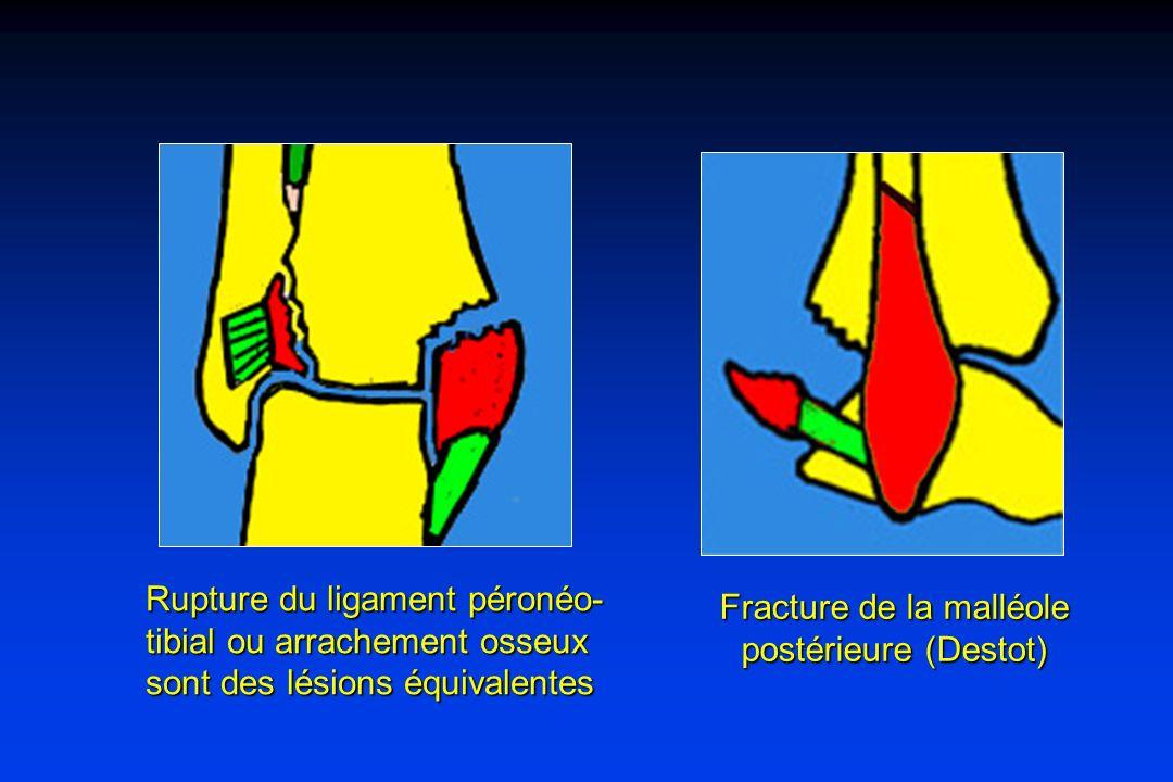 Rupture du ligament péronéo- tibial ou arrachement osseux sont des lésions équivalentes Fracture de la malléole postérieure (Destot)