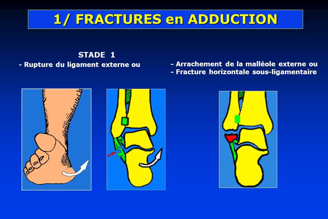 1/ FRACTURES en ADDUCTION STADE 1 - Rupture du ligament externe ou - Arrachement de la malléole externe ou - Fracture horizontale sous-ligamentaire
