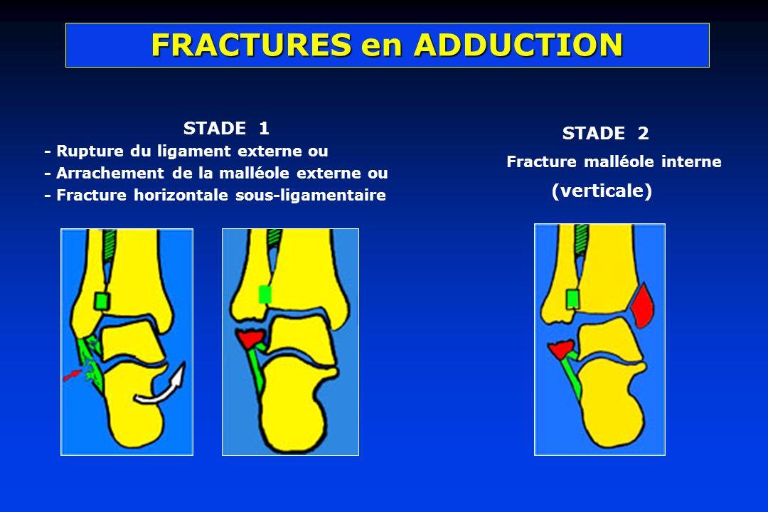 STADE 1 - Rupture du ligament externe ou - Arrachement de la malléole externe ou - Fracture horizontale sous-ligamentaire STADE 2 Fracture malléole in