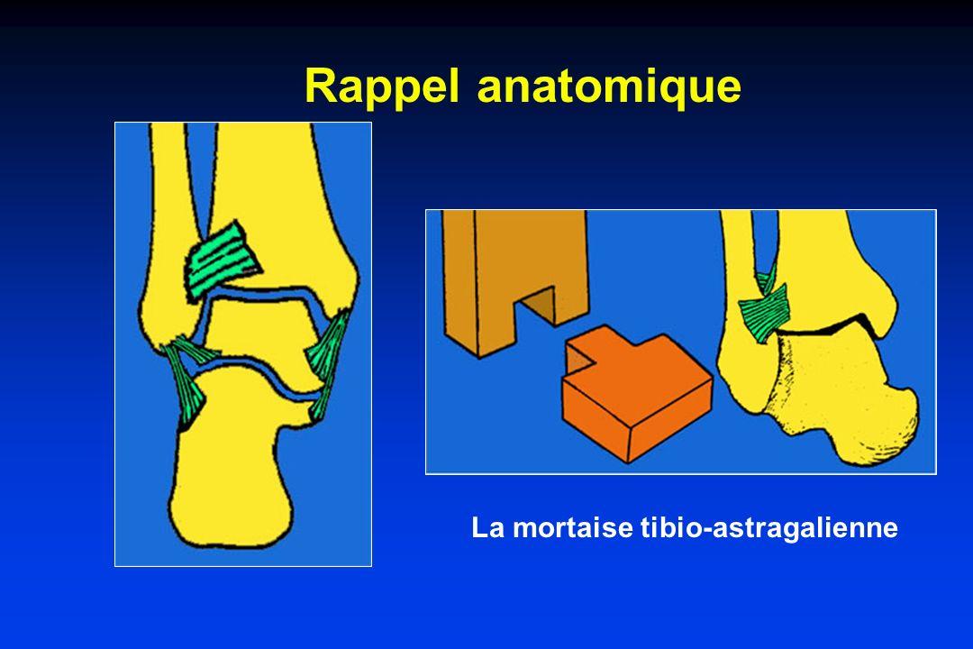 Rappel anatomique des ligaments de la cheville Le ligament latéral : comporte 3 faisceaux : péronéo-astragalien antérieur péronéo-astragalien postérieur péronéo-calcanéen Le ligament interne est le ligament deltoïdien L articulation sous-astragalienne est stabilisée par les ligaments calcanéo- malléolaires et le ligament en haie