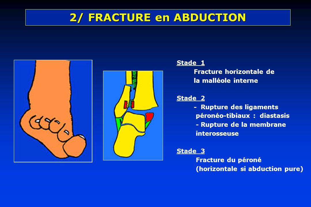 Stade 1 Fracture horizontale de la malléole interne Stade 2 - Rupture des ligaments péronéo-tibiaux : diastasis - Rupture de la membrane interosseuse