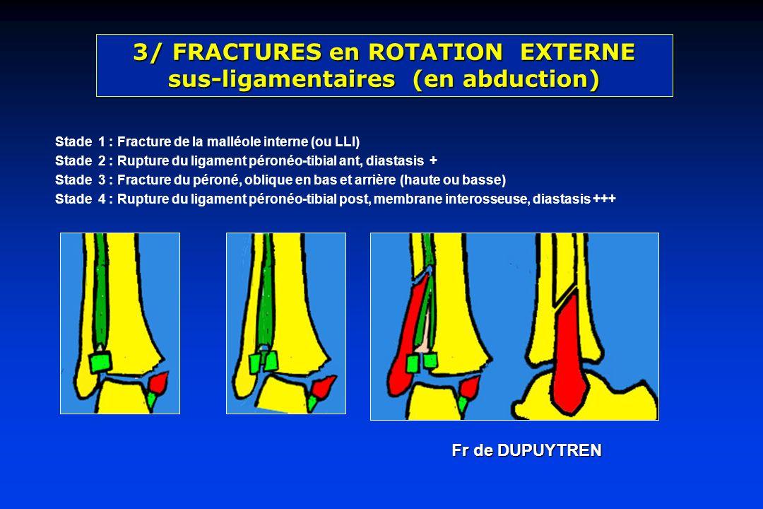 Stade 1 : Fracture de la malléole interne (ou LLI) Stade 2 : Rupture du ligament péronéo-tibial ant, diastasis + Stade 3 : Fracture du péroné, oblique