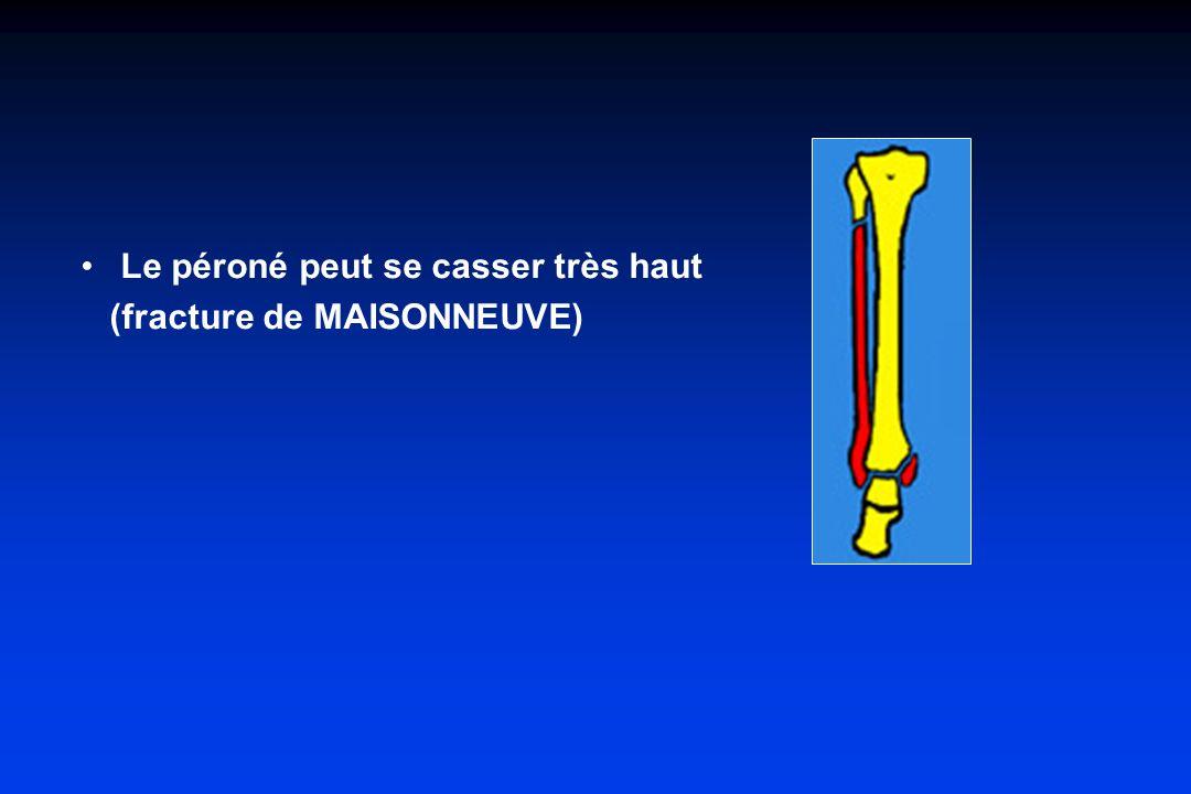 Le péroné peut se casser très haut (fracture de MAISONNEUVE)
