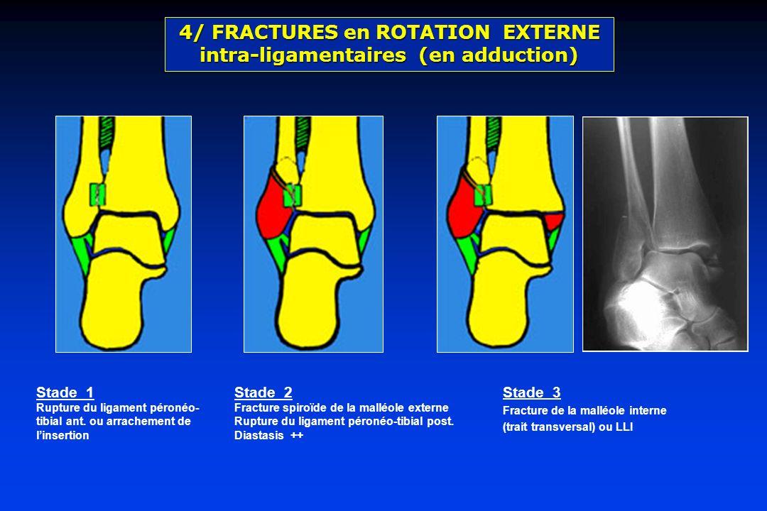 Stade 1 Rupture du ligament péronéo- tibial ant. ou arrachement de linsertion Stade 2 Fracture spiroïde de la malléole externe Rupture du ligament pér