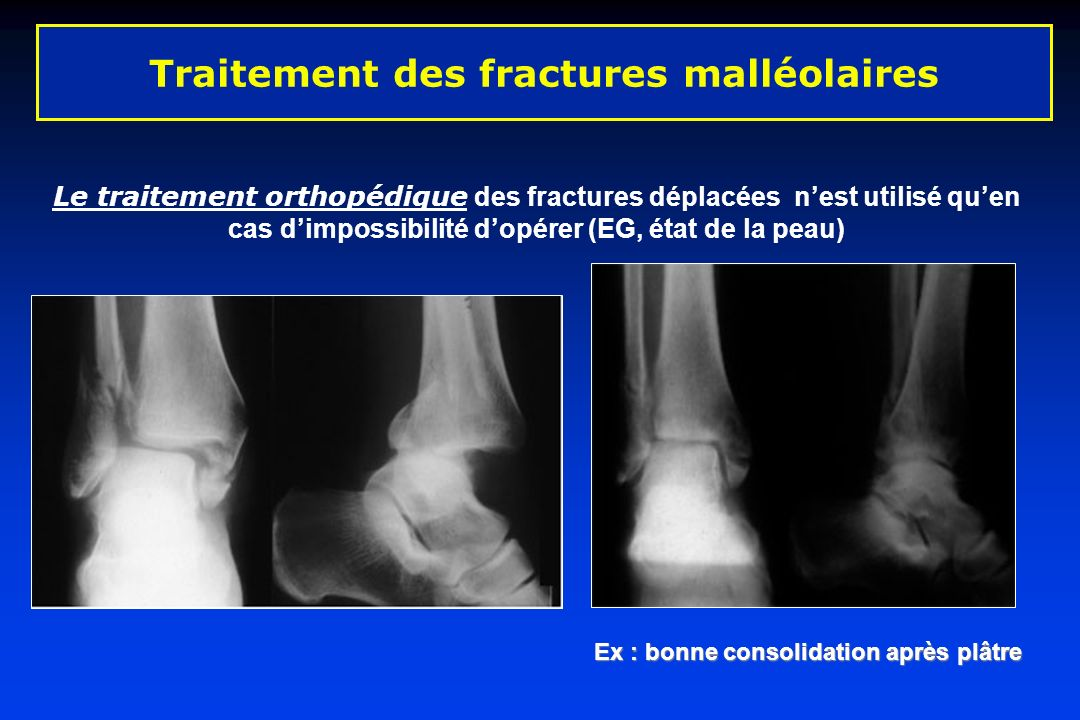 Le traitement orthopédique des fractures déplacées nest utilisé quen cas dimpossibilité dopérer (EG, état de la peau) Traitement des fractures malléol