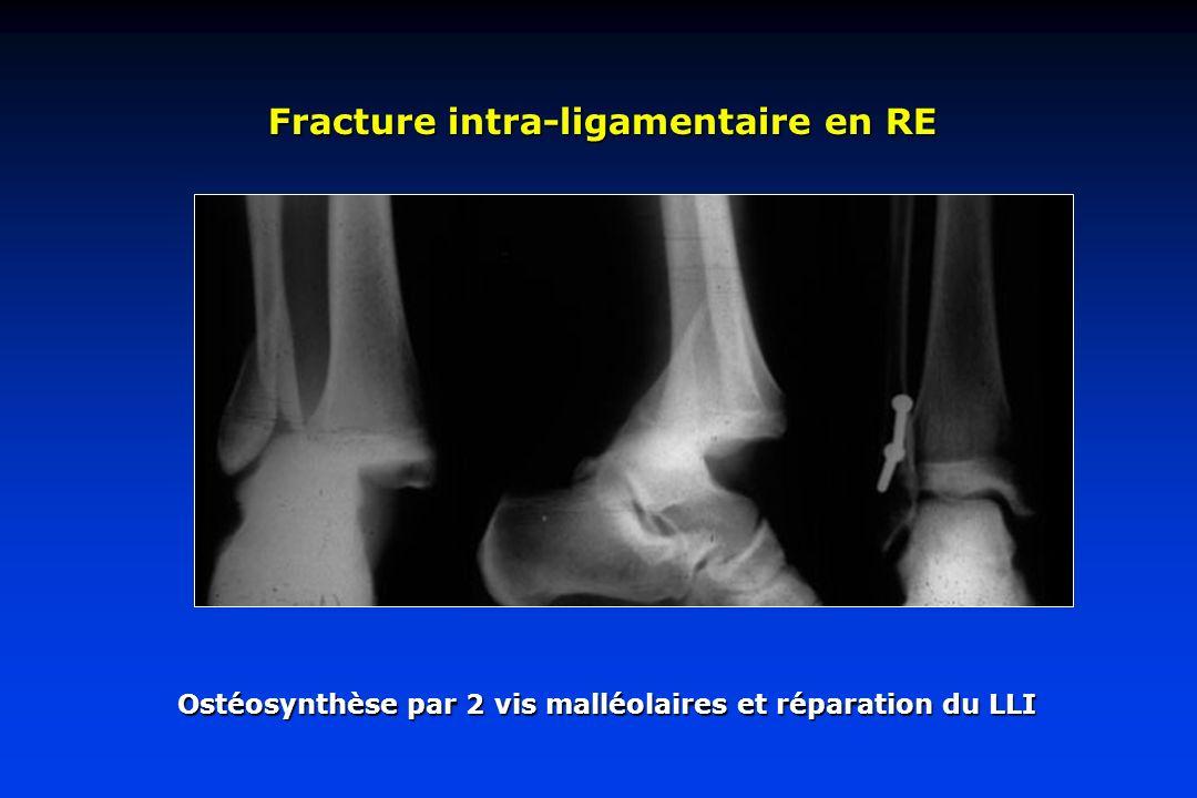 Fracture intra-ligamentaire en RE Ostéosynthèse par 2 vis malléolaires et réparation du LLI