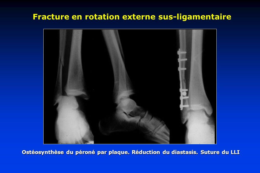 Fracture en rotation externe sus-ligamentaire Ostéosynthèse du péroné par plaque. Réduction du diastasis. Suture du LLI