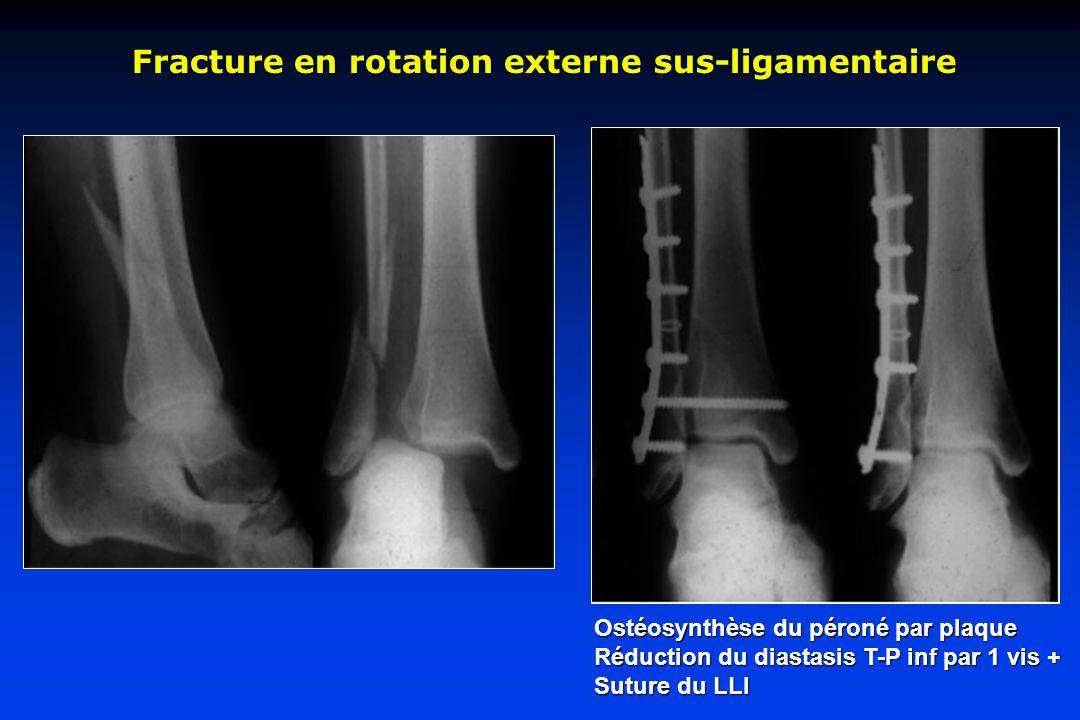 Fracture en rotation externe sus-ligamentaire Ostéosynthèse du péroné par plaque Réduction du diastasis T-P inf par 1 vis + Suture du LLI