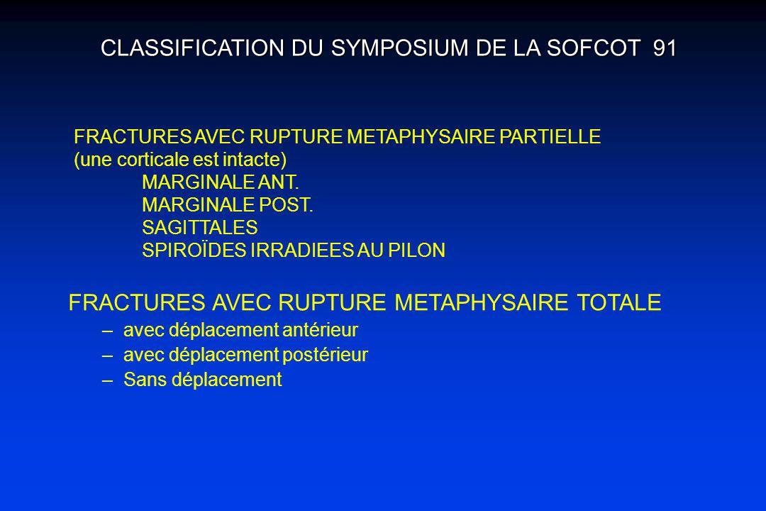 FRACTURES AVEC RUPTURE METAPHYSAIRE PARTIELLE (une corticale est intacte) MARGINALE ANT. MARGINALE POST. SAGITTALES SPIROÏDES IRRADIEES AU PILON CLASS