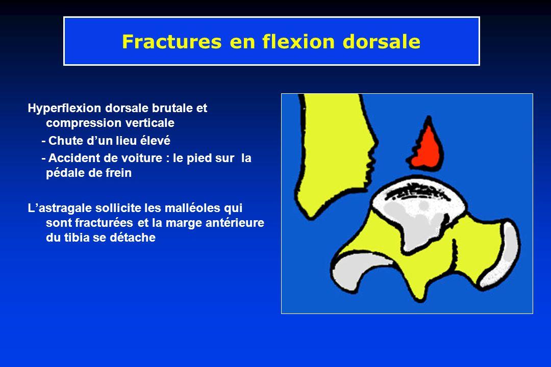 Hyperflexion dorsale brutale et compression verticale - Chute dun lieu élevé - Accident de voiture : le pied sur la pédale de frein Lastragale sollici