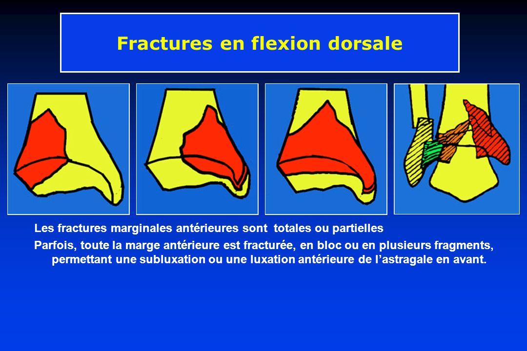 Les fractures marginales antérieures sont totales ou partielles Parfois, toute la marge antérieure est fracturée, en bloc ou en plusieurs fragments, p