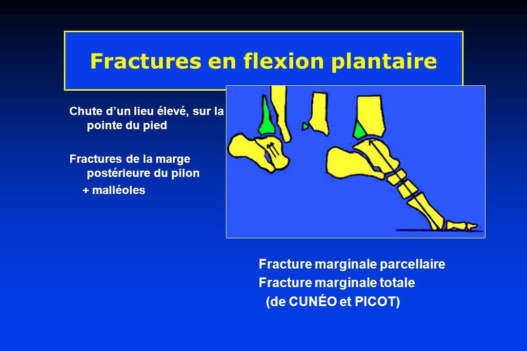 Fractures en flexion plantaire Chute dun lieu élevé, sur la pointe du pied Fractures de la marge postérieure du pilon + malléoles Fracture marginale p