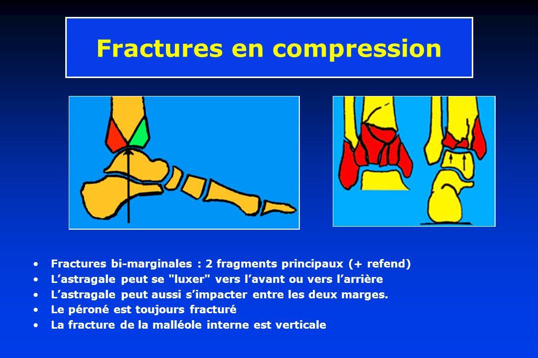 Fractures en compression Fractures bi-marginales : 2 fragments principaux (+ refend) Lastragale peut se