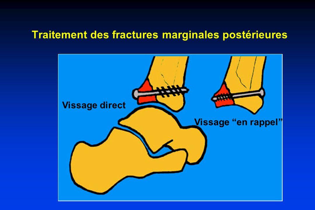 Traitement des fractures marginales postérieures Vissage direct Vissage en rappel