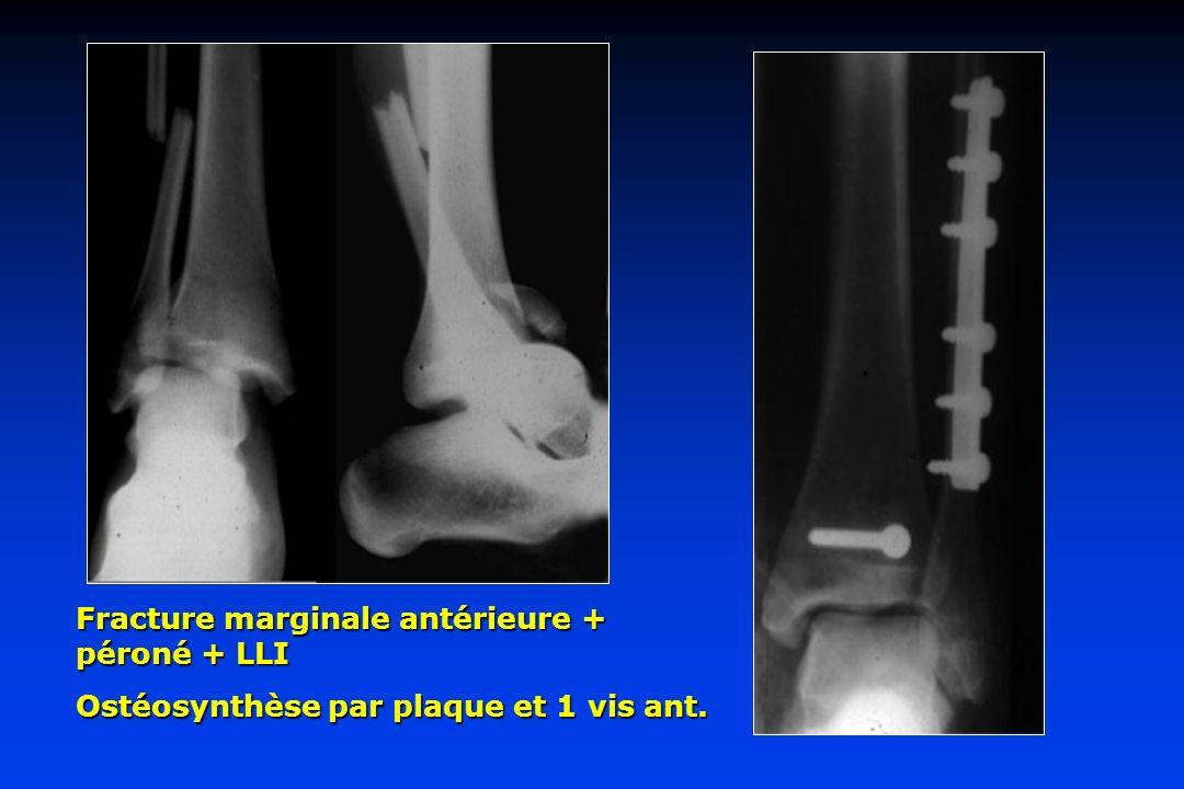 Fracture marginale antérieure + péroné + LLI Ostéosynthèse par plaque et 1 vis ant.