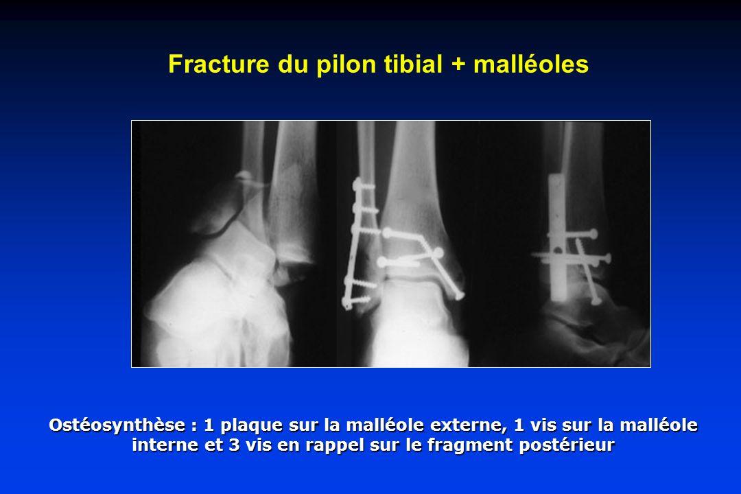 Fracture du pilon tibial + malléoles Ostéosynthèse : 1 plaque sur la malléole externe, 1 vis sur la malléole interne et 3 vis en rappel sur le fragmen