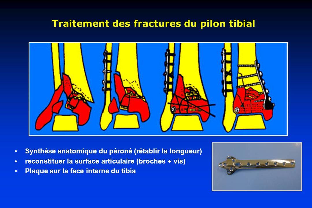Traitement des fractures du pilon tibial Synthèse anatomique du péroné (rétablir la longueur) reconstituer la surface articulaire (broches + vis) Plaq