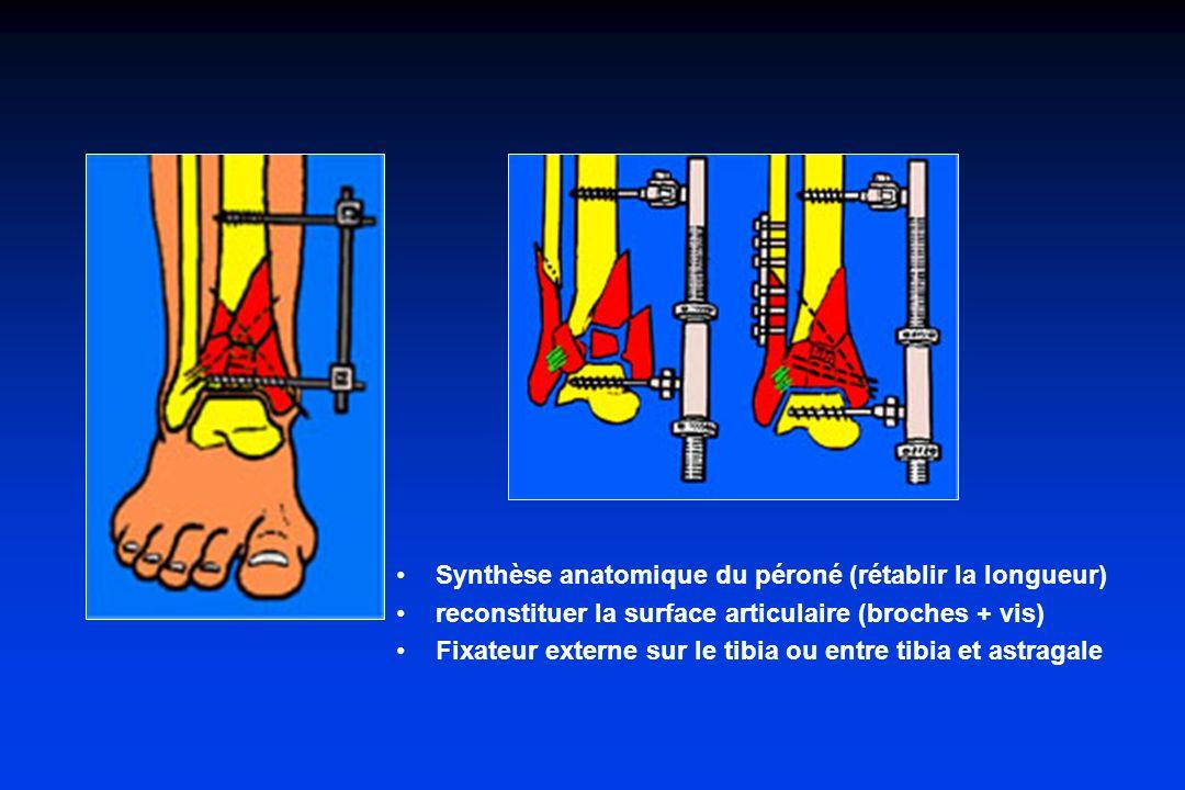 Synthèse anatomique du péroné (rétablir la longueur) reconstituer la surface articulaire (broches + vis) Fixateur externe sur le tibia ou entre tibia
