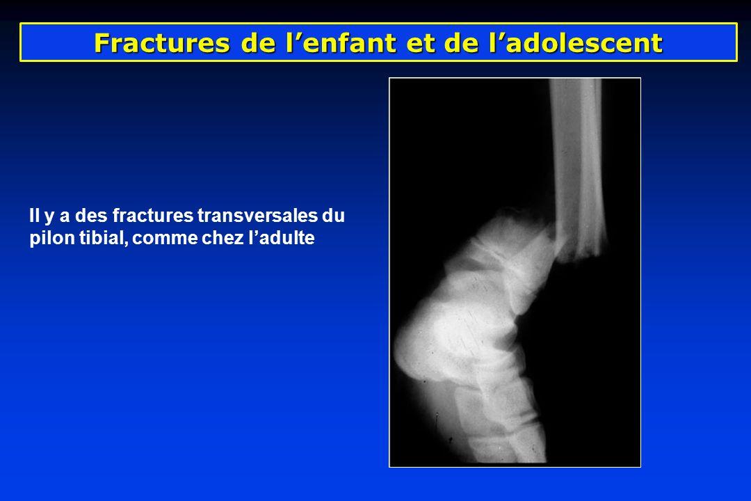 Fractures de lenfant et de ladolescent Il y a des fractures transversales du pilon tibial, comme chez ladulte
