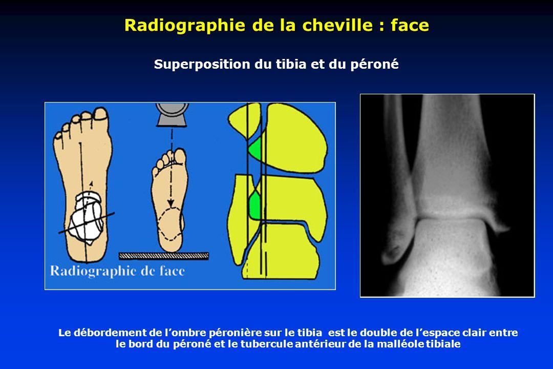 Superposition du tibia et du péroné Radiographie de la cheville : face Le débordement de lombre péronière sur le tibia est le double de lespace clair