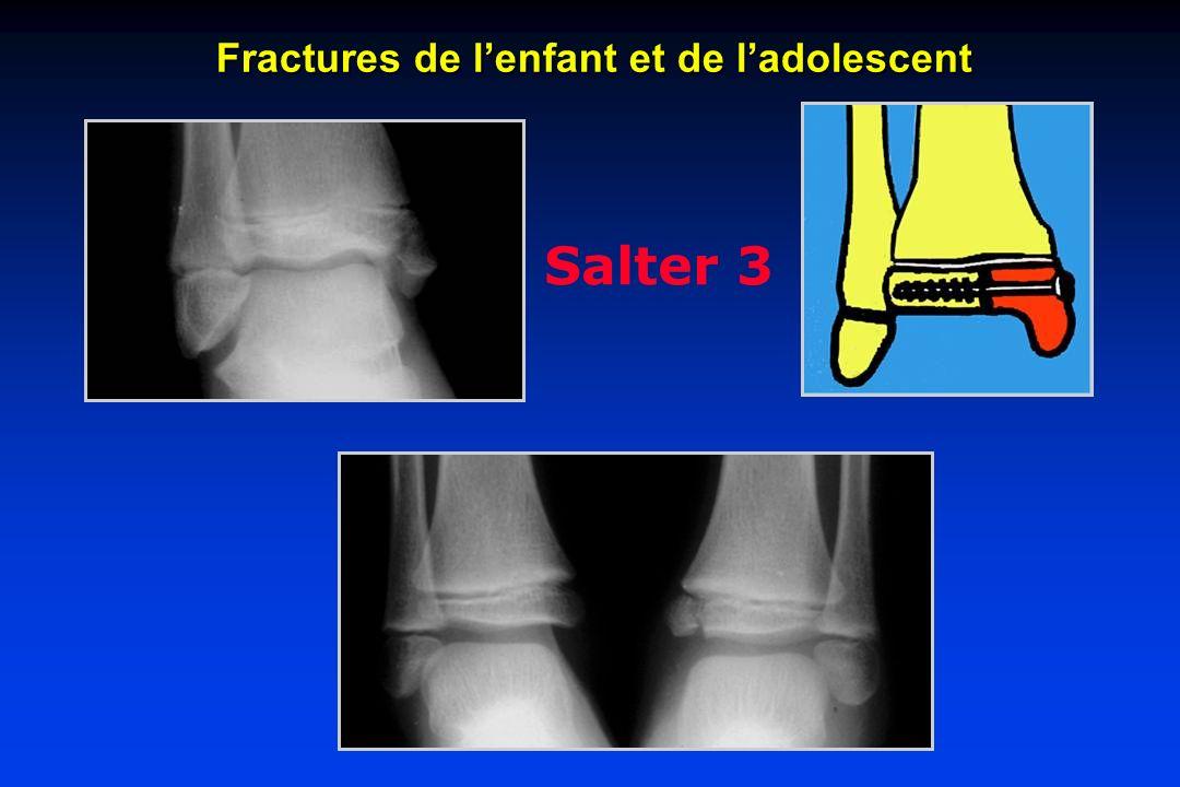 Salter 3 Fractures de lenfant et de ladolescent