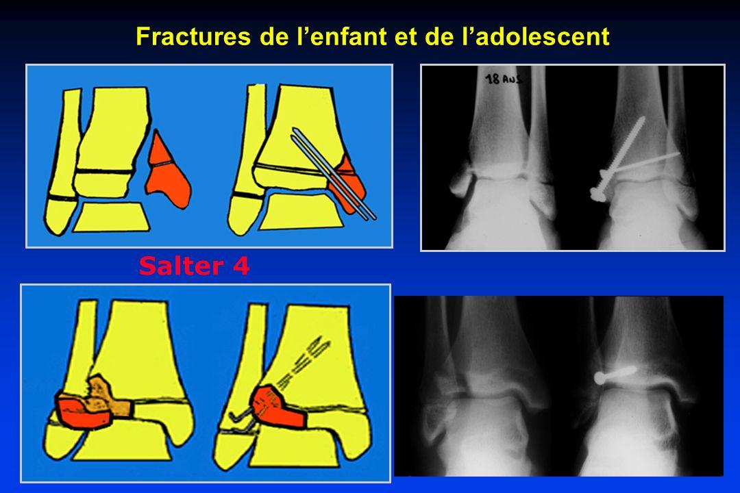 Salter 4 Fractures de lenfant et de ladolescent