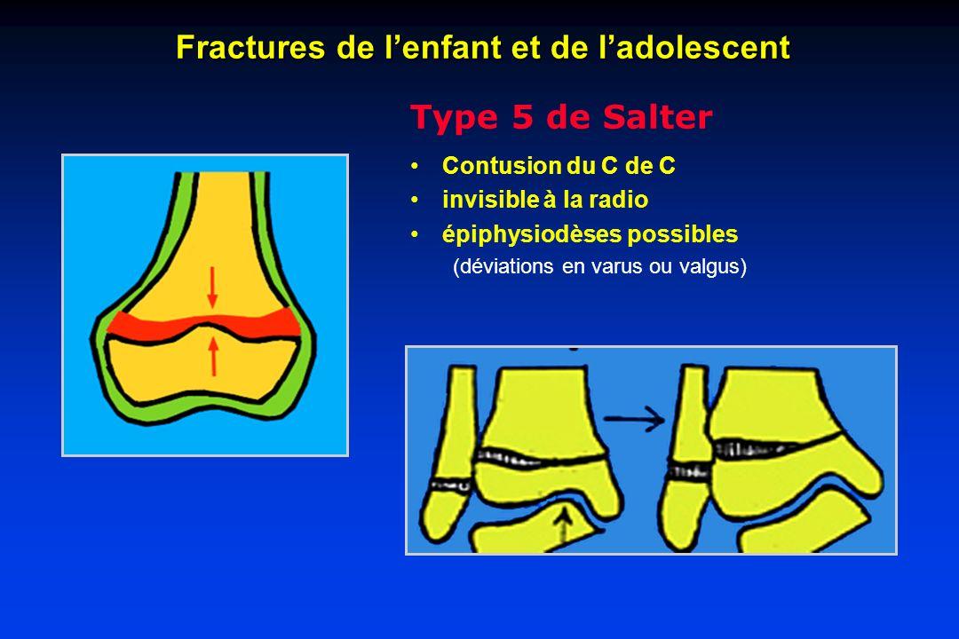 Type 5 de Salter Contusion du C de C invisible à la radio épiphysiodèses possibles (déviations en varus ou valgus) Fractures de lenfant et de ladolesc