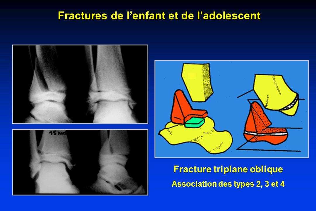 Fracture triplane oblique Association des types 2, 3 et 4 Fractures de lenfant et de ladolescent