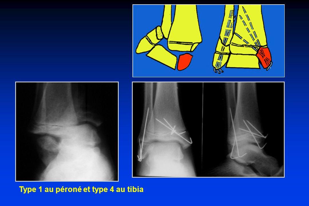 Type 1 au péroné et type 4 au tibia