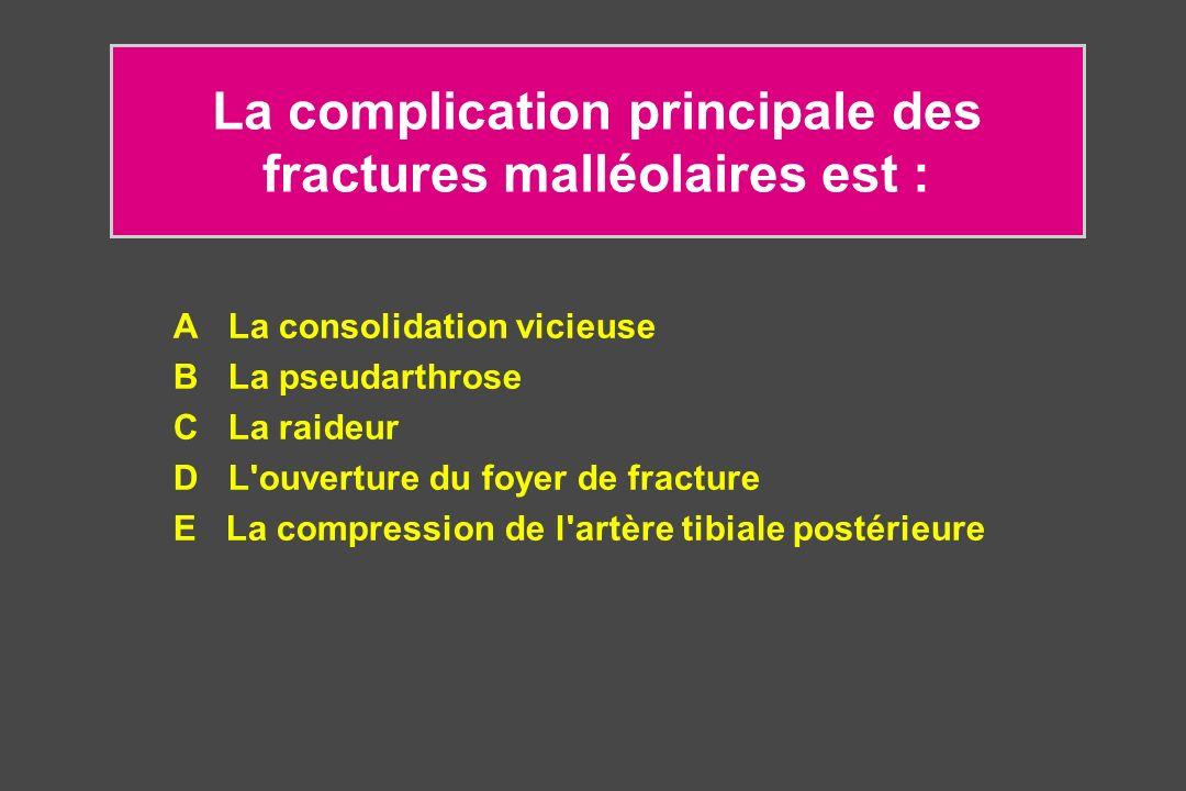 La complication principale des fractures malléolaires est : A La consolidation vicieuse B La pseudarthrose C La raideur D L'ouverture du foyer de frac