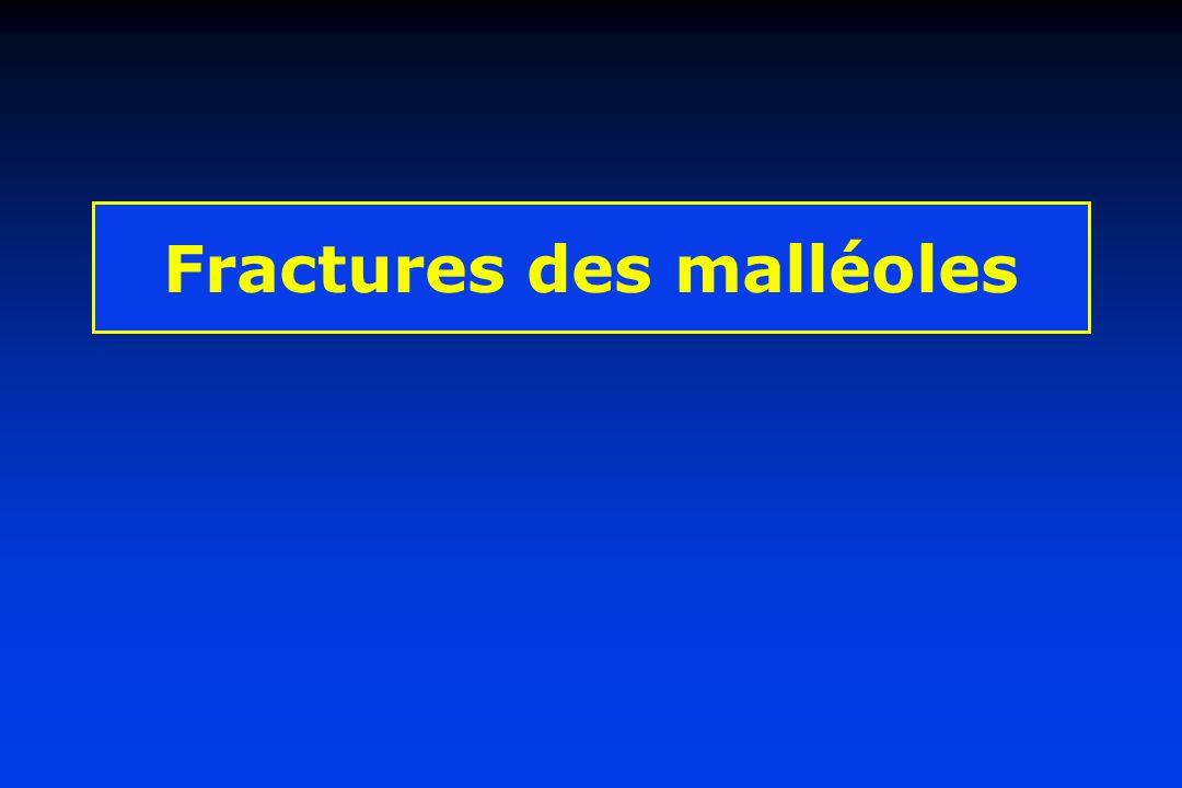 Fractures de la malléole externe - Les traits sont : transversaux, spiroïdes ou comminutifs -Situation à définir par rapport aux ligaments péronéo-tibiaux (DANIS) -ou aux tubercules malléolaires (DUPARC) - Fract.