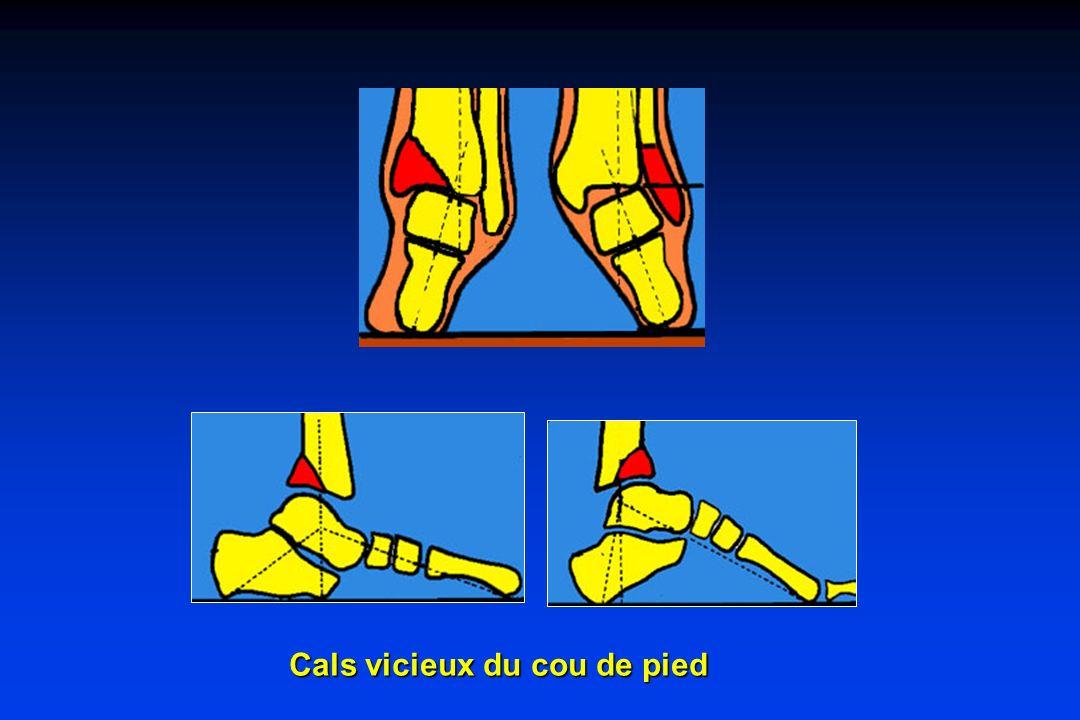 Cals vicieux du cou de pied