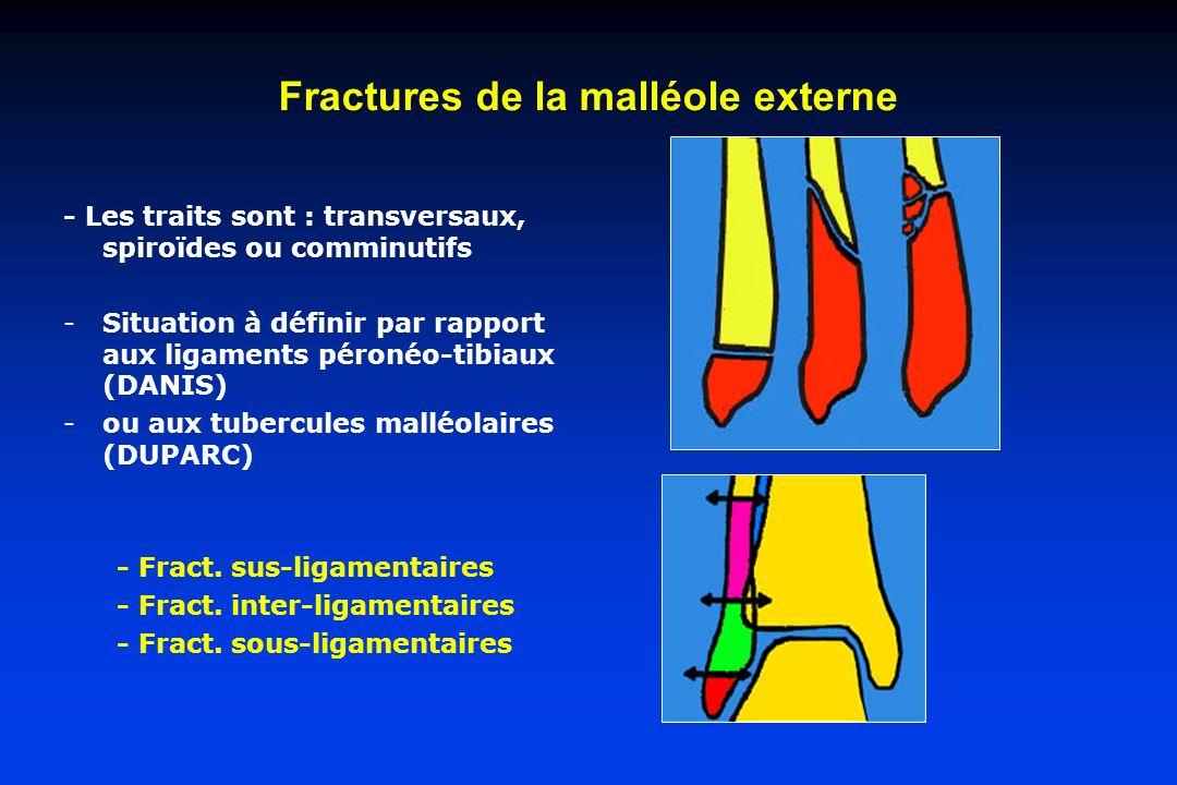 Fractures de la malléole externe - Les traits sont : transversaux, spiroïdes ou comminutifs -Situation à définir par rapport aux ligaments péronéo-tib