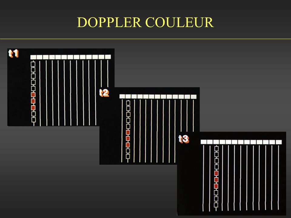 DOPPLER COULEUR
