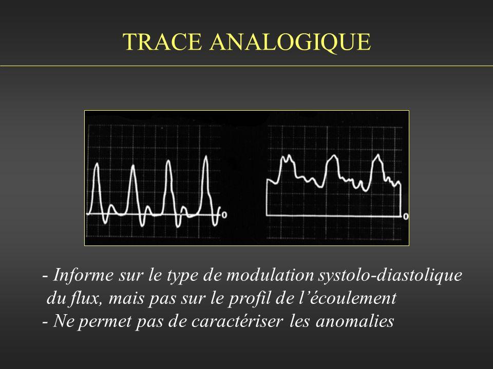 TRACE ANALOGIQUE - Informe sur le type de modulation systolo-diastolique du flux, mais pas sur le profil de lécoulement - Ne permet pas de caractérise