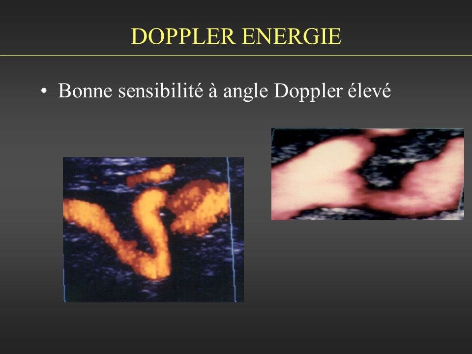 DOPPLER ENERGIE Bonne sensibilité à angle Doppler élevé