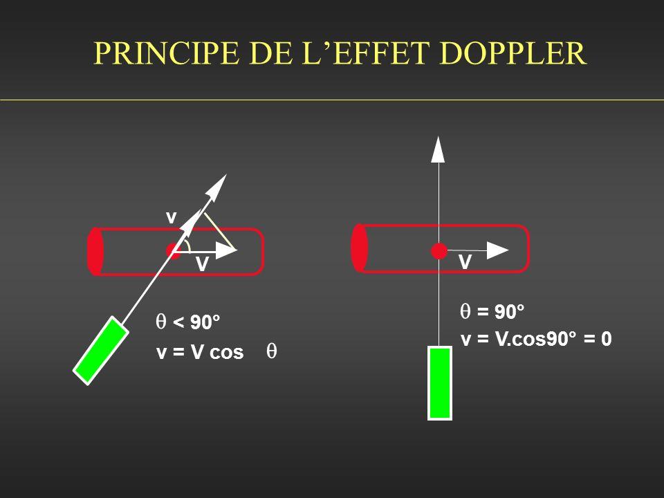 PRINCIPE DE LEFFET DOPPLER V v = V.cos90° = 0 = 90° V v v = V cos < 90°
