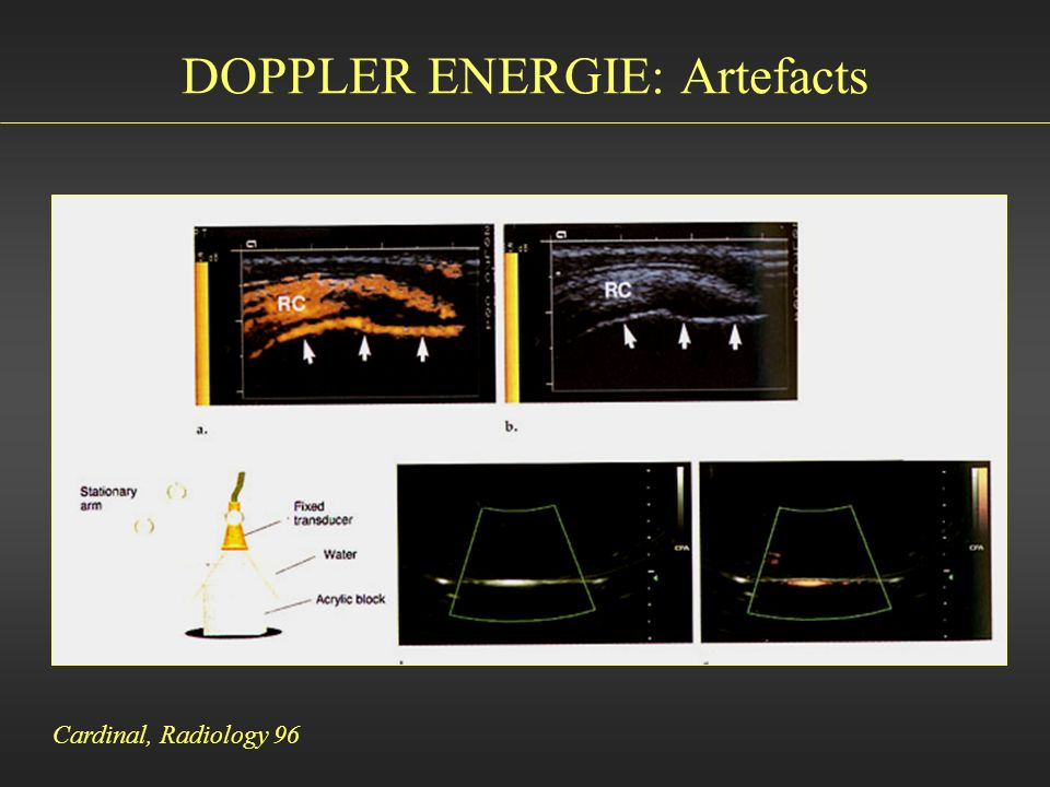 DOPPLER ENERGIE: Artefacts Cardinal, Radiology 96