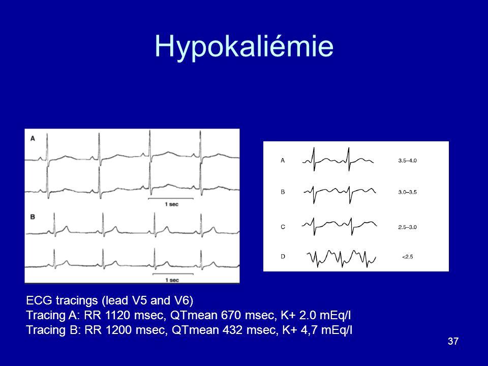 37 Hypokaliémie ECG tracings (lead V5 and V6) Tracing A: RR 1120 msec, QTmean 670 msec, K+ 2.0 mEq/l Tracing B: RR 1200 msec, QTmean 432 msec, K+ 4,7