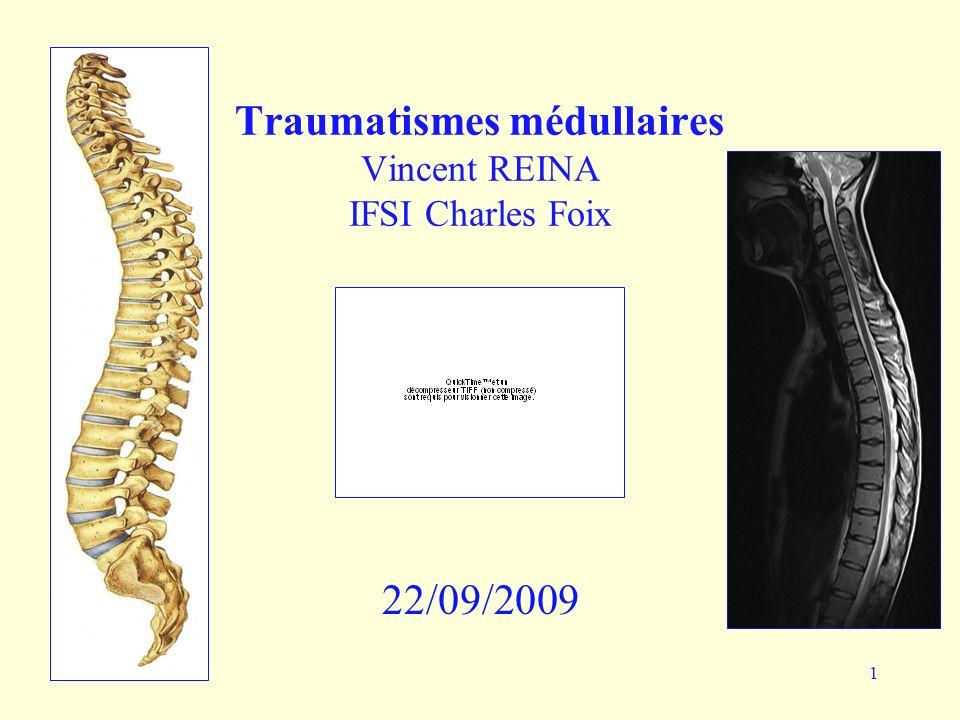 22/09/200922 Examen neurologique Section médullaire: définitive Choc spinal initial: paralysie flasque, anesthésie à tous les modes, aréflexie, RAU, atonie du sphincter anal, sd végétatif svt associé Automatisme médullaire secondaire: sd pyramidal, récupération contrôle sphinctérien +/- Commotion médullaire: récup° rapide et complète Contusion médullaire: récup° aléatoire Queue de cheval: examen du périnée, recherche sd de la queue de cheval, TR, TV, sensiblité péri anal, RAU.
