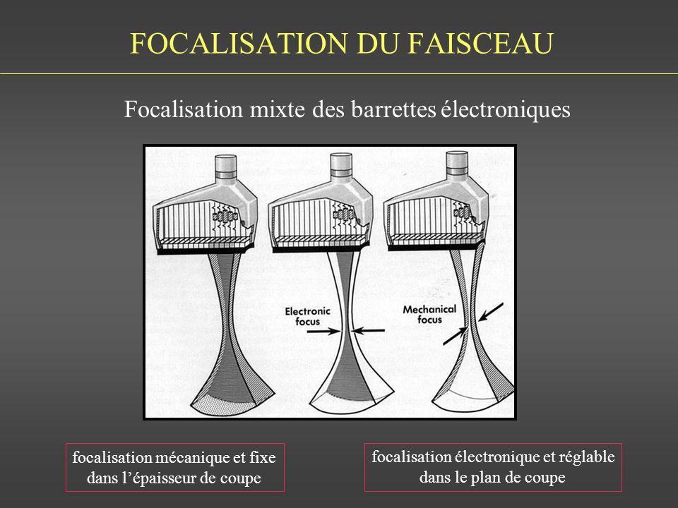 FOCALISATION DU FAISCEAU Focalisation mixte des barrettes électroniques BUSHONG FIG 11-22 focalisation mécanique et fixe dans lépaisseur de coupe foca