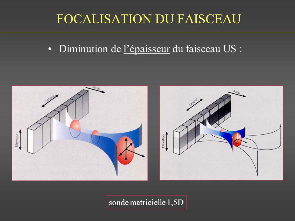 FOCALISATION DU FAISCEAU Diminution de lépaisseur du faisceau US : sonde matricielle 1,5D