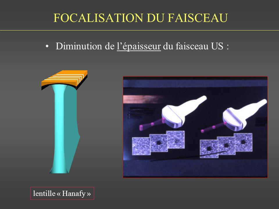 FOCALISATION DU FAISCEAU Diminution de lépaisseur du faisceau US : lentille « Hanafy »