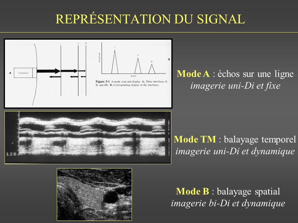 REPRÉSENTATION DU SIGNAL Mode A : échos sur une ligne imagerie uni-Di et fixe Mode TM : balayage temporel imagerie uni-Di et dynamique Mode B : balaya