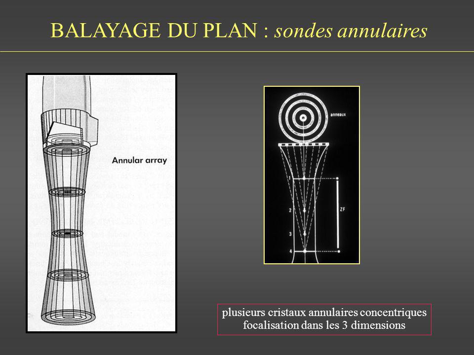 BALAYAGE DU PLAN : sondes annulaires plusieurs cristaux annulaires concentriques focalisation dans les 3 dimensions